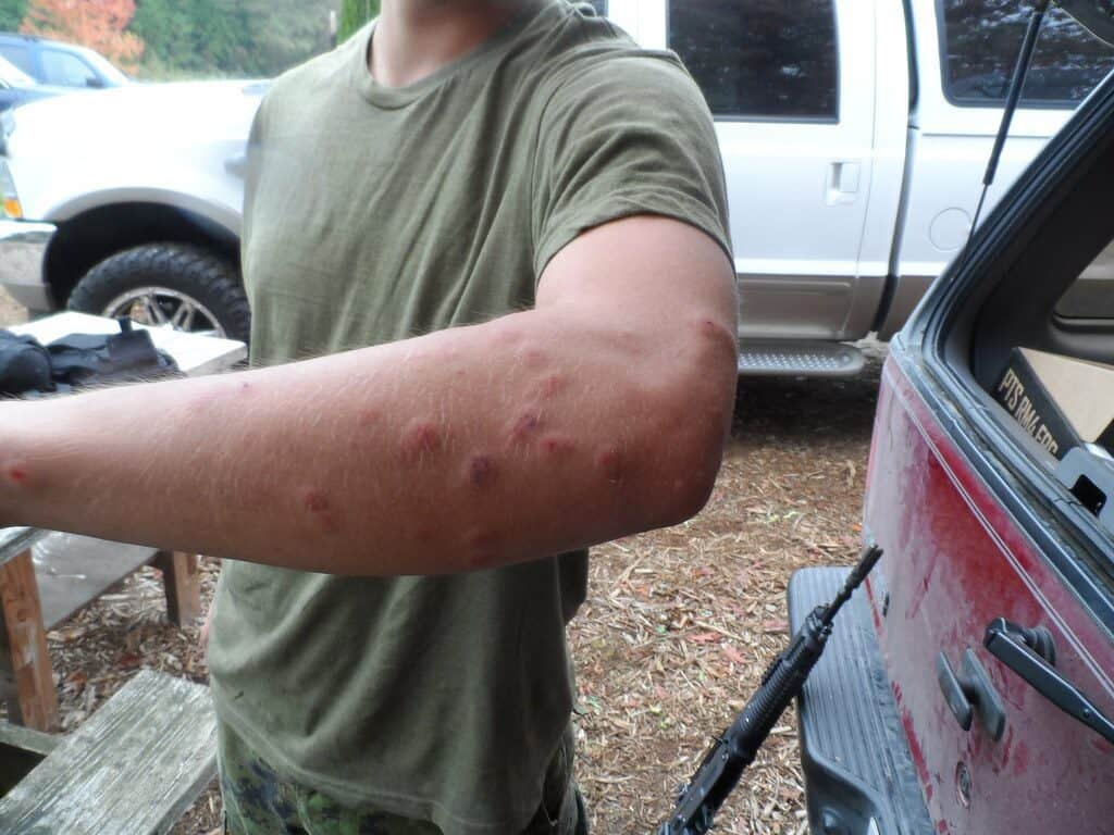 Does Airsoft Hurt?